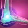 prp therapy feet